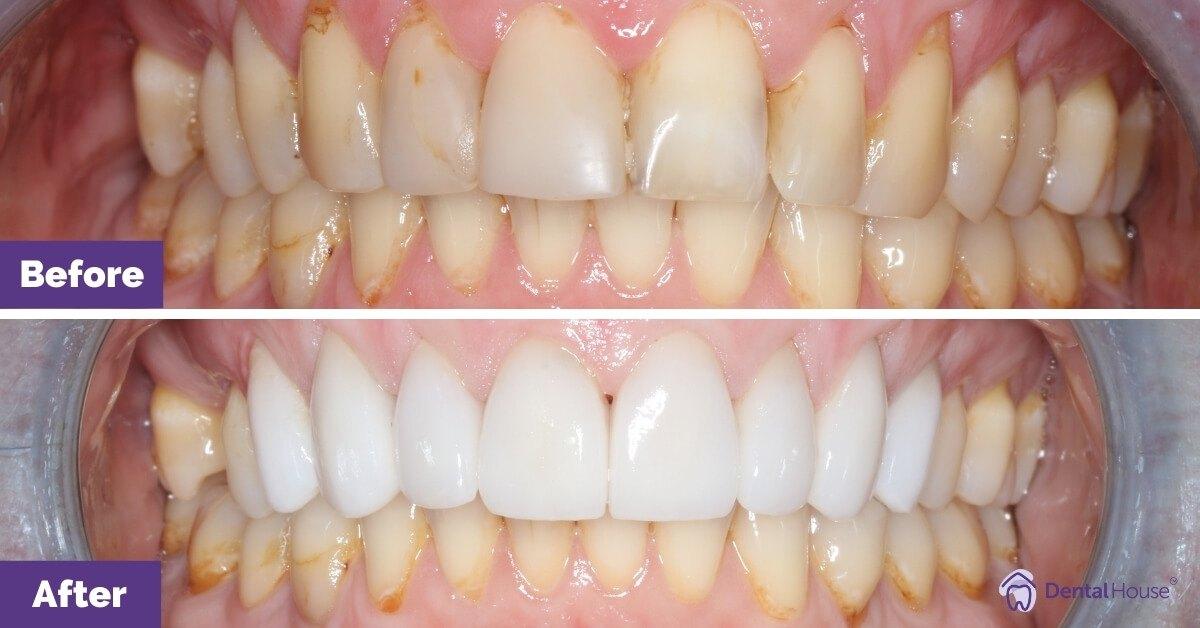 Dental-House-Group_Melissa_Smile-Makeover-Journey