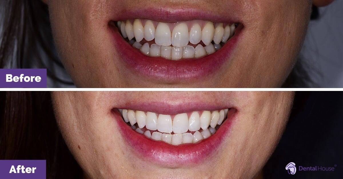 Dental-House-Group-_Penny-Smile-Makeover-Journey