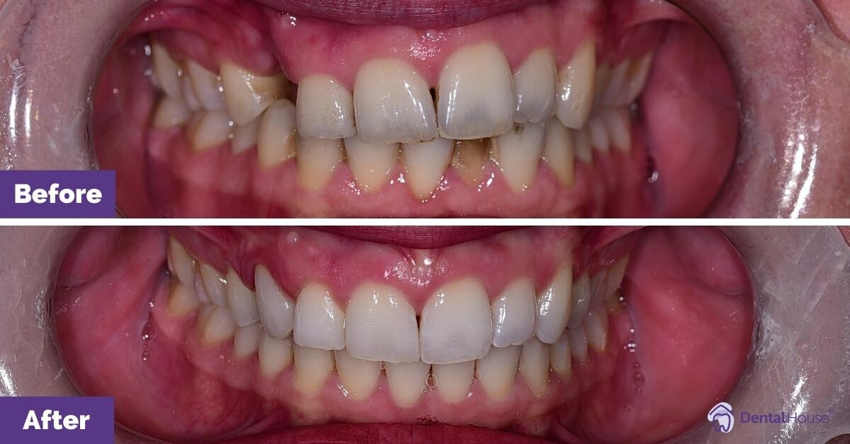 Dental-House-Group_Katherine-Smile-Makeover-Journey