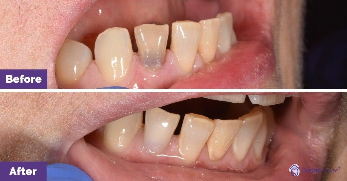 Dental-House-Group_Internal-Bleaching