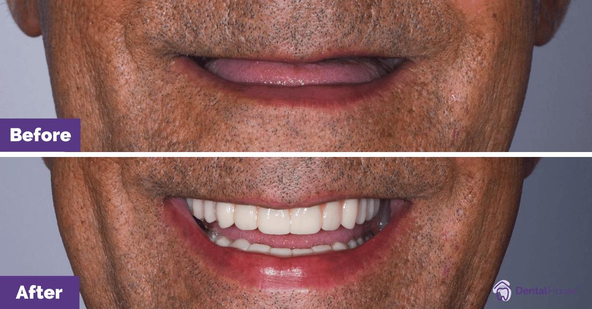 Dental-Implant-in-Melbourne-3
