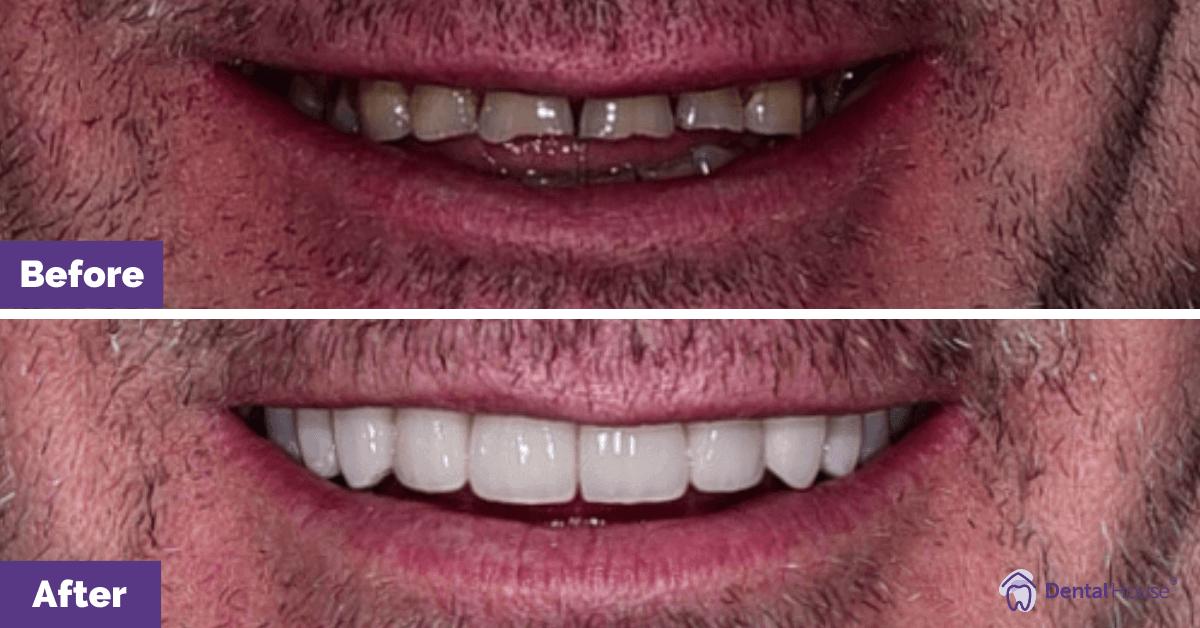 Jako_Porcelain-veneers_Melbourne_Dental-House