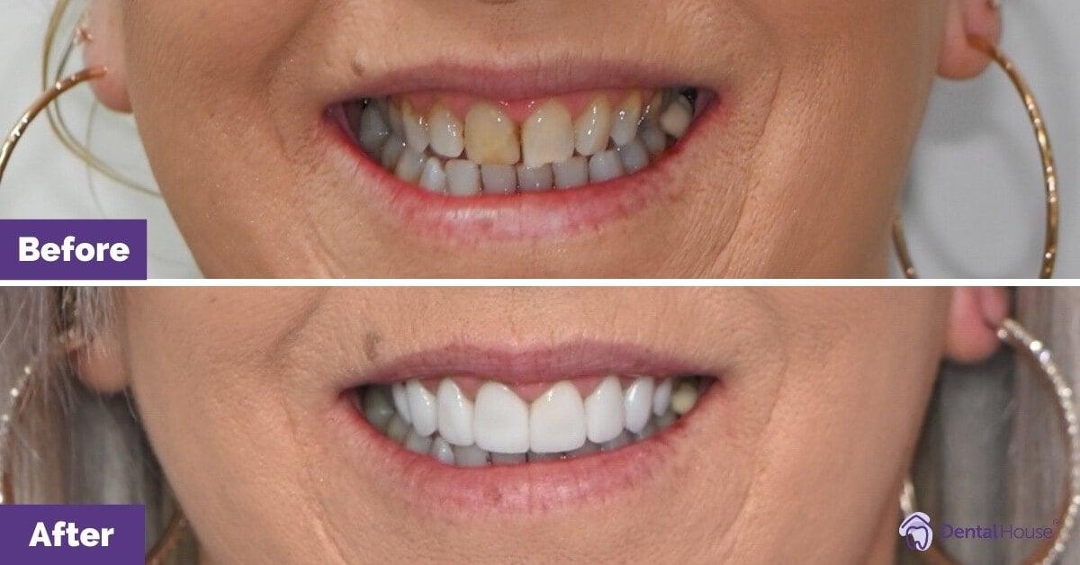 Dental-House-Group_Linda_Smile-Makeover-Journey-1