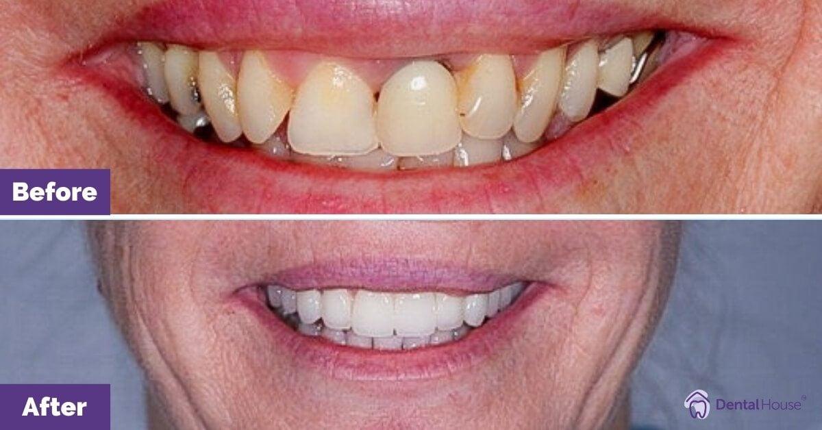 Dental-House-Group_Linda_mile-Makeover-Journey