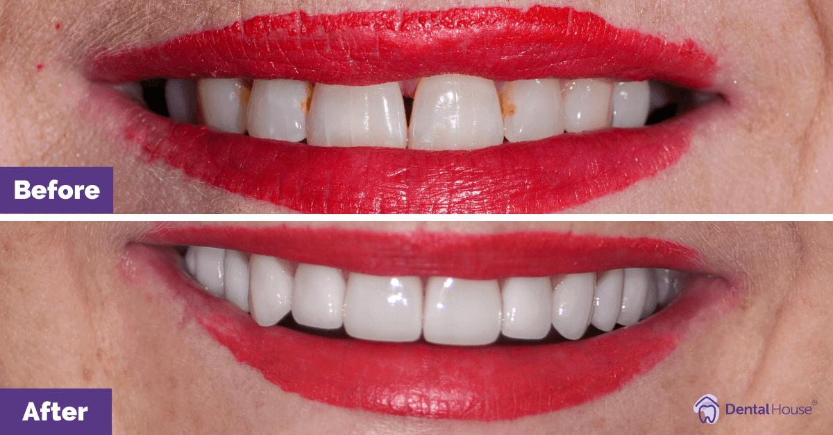 Dental-Implant-and-Porcelain-Veneers-in-Sunbury-3