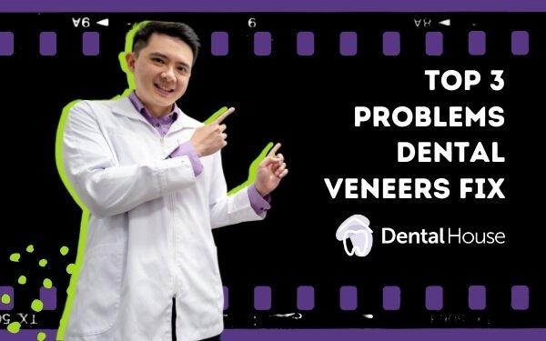 Top 3 Problems Dental Veneers Fix