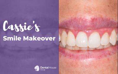 Cassie's Smile Makeover in Sunbury