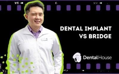 Dental Implant Versus Bridge