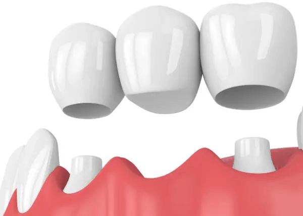 Dental Implant Bridge Dental House Melbourne