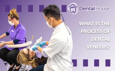 What Is The Process Of Dental Veneers?