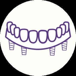 All-On-4 Icon Dental House Sunbury